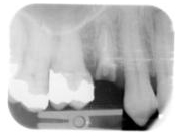Periodical radiograph