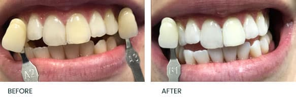 Teeth Whitening Before After 2
