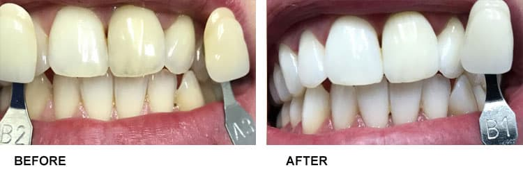 Teeth Whitening Before After 4