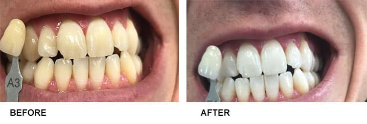 Teeth Whitening Before After 10