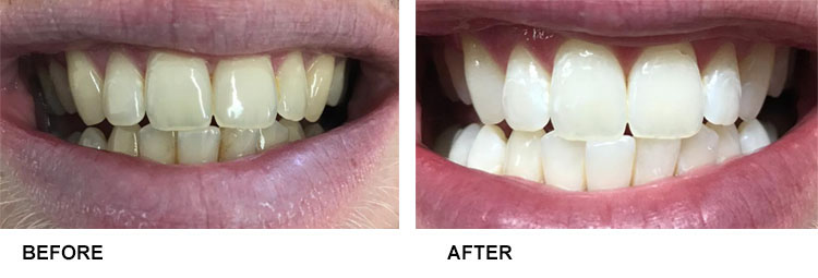 Teeth Whitening Before After 11