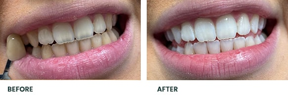 Teeth Whitening Before After 12