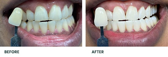 Teeth Whitening Before After 13