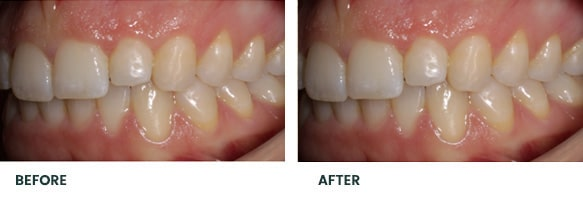 Teeth Whitening Before After 14