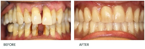 Upper and Lower full arch implant reconstruction