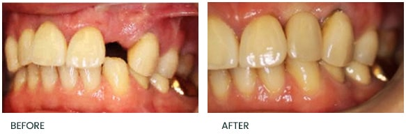Delayed replacement of a upper left lateral incisor