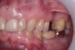 Single implant missing case 1