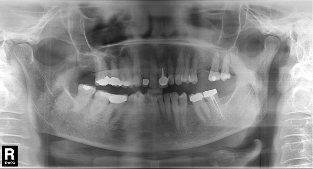 Single implant missing case 7