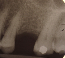 Single implant missing case 8