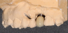 Single implant missing case 14