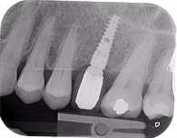 Single implant missing case 15
