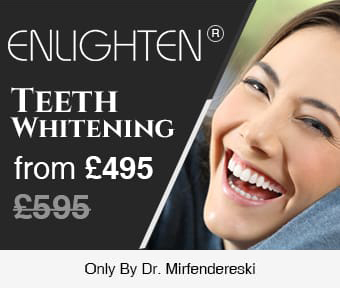 Enlighten offer banner