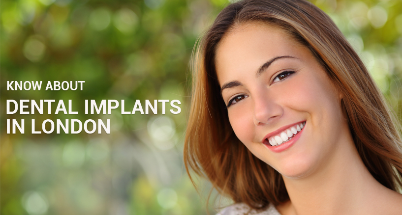 know about dental implants in london