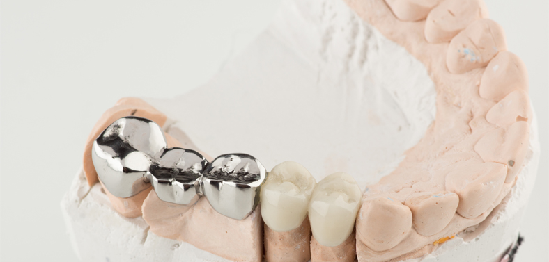 prosthodontics with bridges and crowns