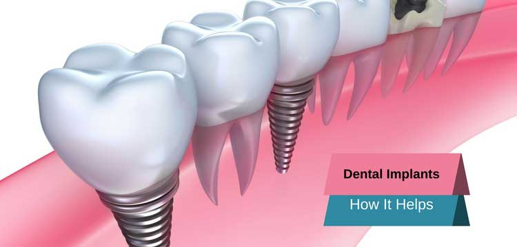 Dental implants and how it helps