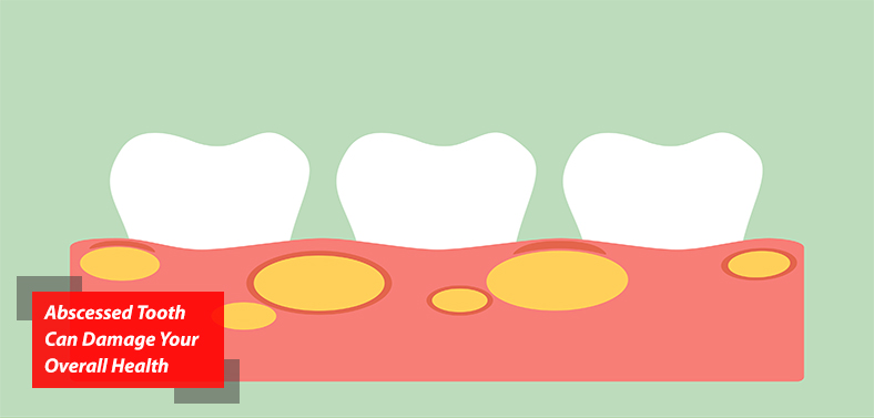 An Abscessed Tooth Can Damage Your Overall Health Condition