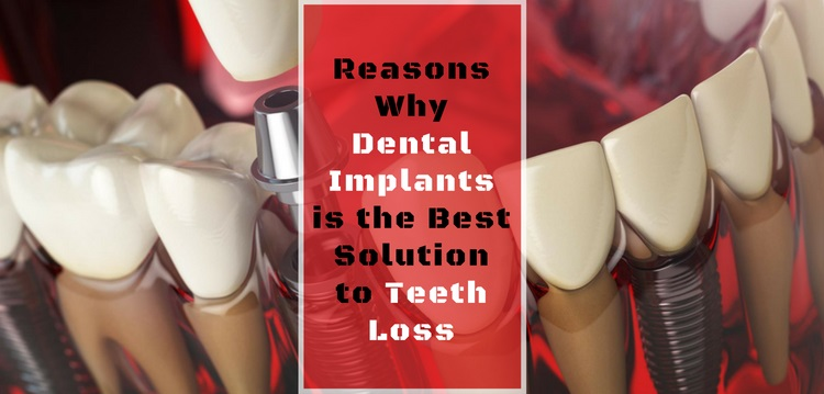Solution for teeth loss