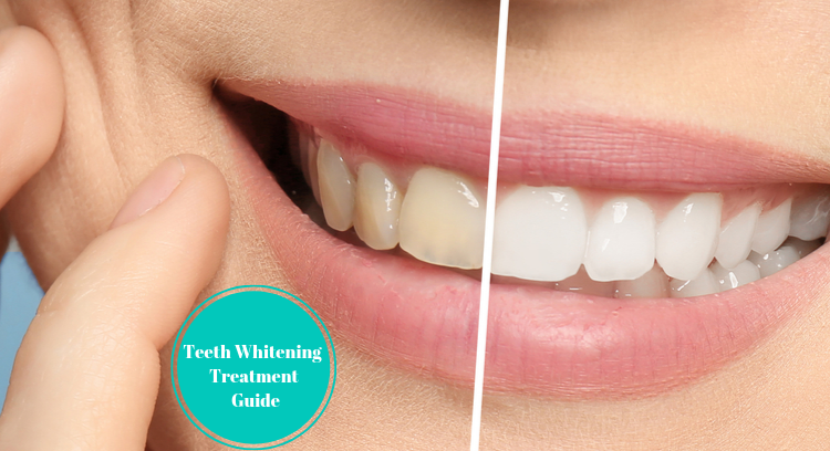 Teeth Whitening Treatment Guide
