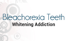 Bleachorexia a teeth whitening