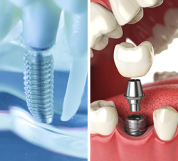 Zirconia dental implants vs titanium implants
