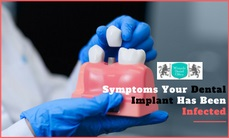 Symptoms of dental implants