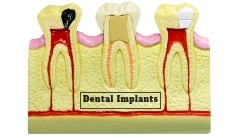 facts about dental implants for missing teeth