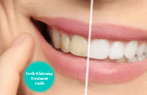 Teeth Whitening Treatment Guide Small