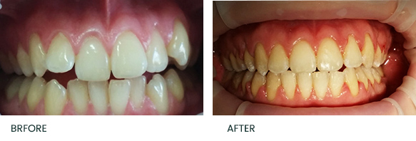 Adult Braces and Smile Makeover