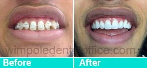 Smile gallery before after
