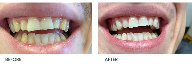 Teeth Whitening Treatment 2